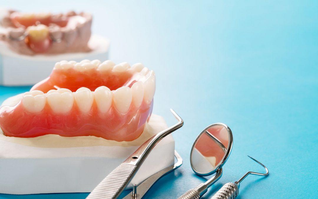 Dantų protezavimas – tiltelis ar implantai?