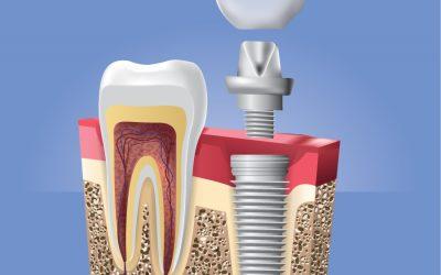 Net ir vieno danties netekimas atsiliepia tiek fizinei, tiek emocinei sveikatai