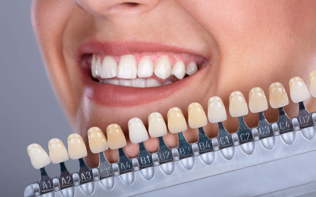 Nedžiugina šypsena? Su prasta dantų estetika susigyventi nereikia