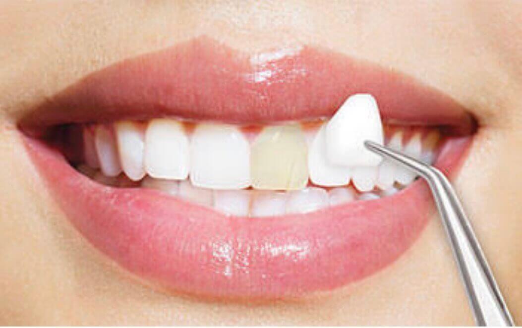 Nauja šypsena, naujas aš – kada rinktis protezavimą laminatėmis?